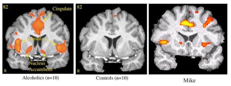 brain scan addiction